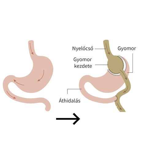 rák a gyomor bypass után